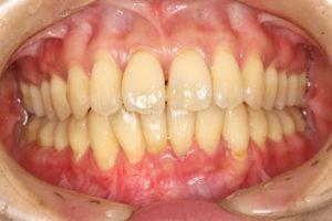 歯肉退縮の治療