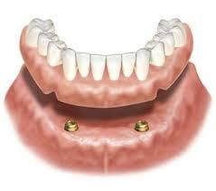 義歯を安定するロケーター