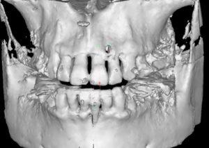 重度歯周病 薬物療法後