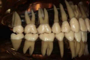 大臼歯の歯根