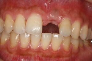 自然な歯のようなインプラント